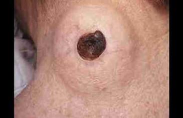 Na vratu je imao gromnu čvorugu iz koje je virila crna tačka – Doktori nisu mogli vjerovati svojim očima šta su izvadili iz ovog čovjeka