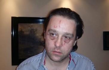 Ovo je muškarac koji je 'izujedao' Sergeja Trifunovića: Iznio svoju stranu priče