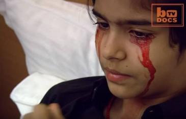 Umjesto suza iz njenih očiju teče krv – Doktori ne znaju od čega boluje, a država je optužuje da glumi