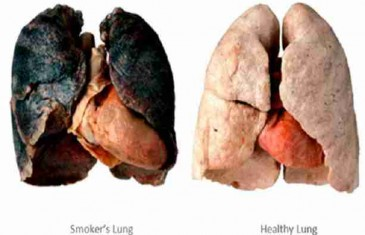 PREVARENI SMO? CRNA PUŠAČKA PLUĆA NE POSTOJE: Mnogi stogodišnjaci pušili su i 60 cigareta dnevno!