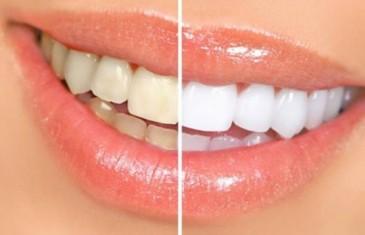 OVO VAM NIJEDAN ZUBAR NEĆE REĆI: Uklonite zubni kamenac pomoću ova DVA SASTOJKA