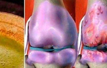 ZALUDIO SVIJET I UŠUTKAO DOKTORE: Liječi bolna koljena i regeneriše kosti i zglobove odmah!