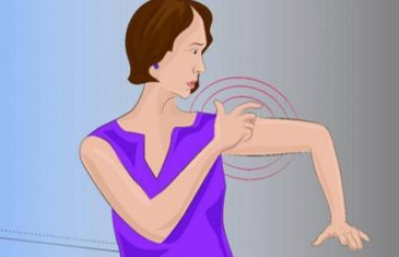 Mjesec dana prije moždanog udara, vaše tijelo će vam poslati OVO UPOZORENJE – Nemojte ga ignorisati!
