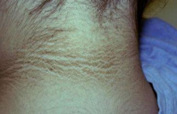 Jedna promjena na koži može biti znak raka i dijabetesa, a javlja se na pazuhu, preponama i vratu