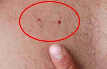 OVO SVI TREBAJU ZNATI: Ako imate ove crvene tačkice po tijelu, evo šta trebate raditi!