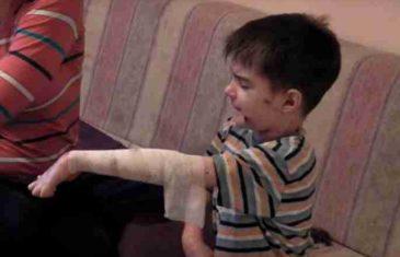 Svaki zagrljaj BOLI KAO SO NA RANU: Evo šta je bolest DJECE LEPTIRA od koje je umro mali Despot