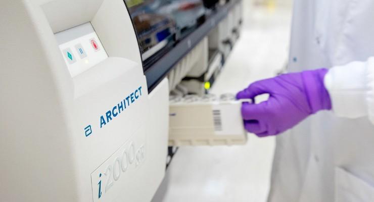 Rezultati su 99 posto pouzdani: Novi test kojim se provjerava je li neko bio zaražen koronavirusom odobren u cijeloj Evropi