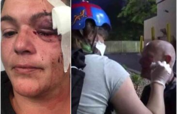 GUMENIM MECIMA GAĐALI NOVINARE U LICE: Povređena ekipa Rojtersa, reporterki eksplodirala očna jabučica