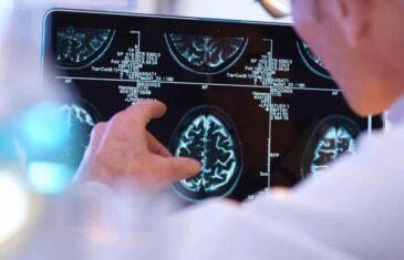 SADA I SNIMAK MOZGA KOD ČOVJEKA ZARAŽENOG KORONOM MOŽE POTVRDITI INFEKCIJU: Ovo je NAJZAGONETNIJI simptom!