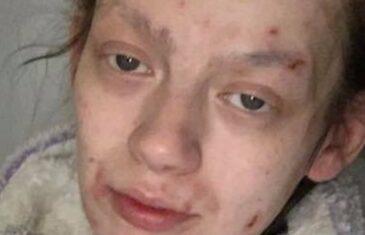 ŠOKANTNA TRANSFORMACIJA: D**girala se 2 godine, poslije 4 mjeseca bez droge izgleda kao druga osoba!