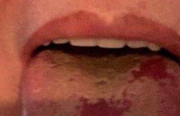 Liječnik objavio fotografiju 'covid jezika': 'Sve više ljudi nam se javlja s ovim simptomom'